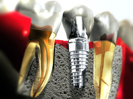 DENTAL IMPLANT COSTS, TYPES AND PROCEDURES ( Dental Fees )