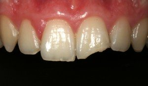 Dental bonding -fractured tooth before