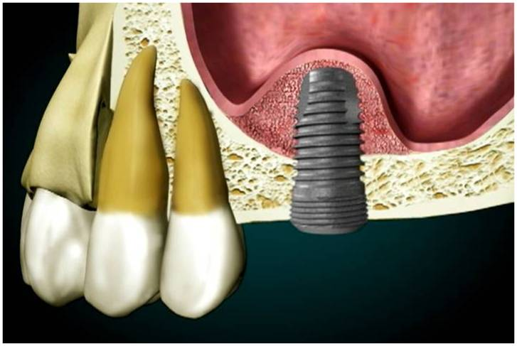 Dental Implants sinus grafting