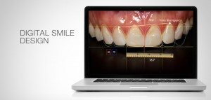 smile makeover dentistry