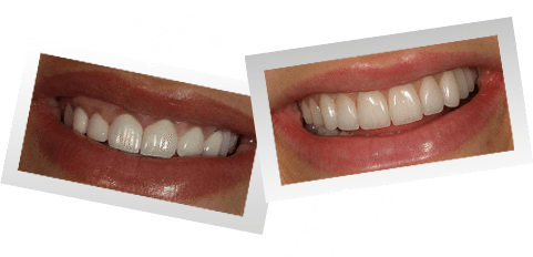 Smile Makeover Preston - Before and After