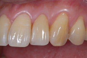 cosmetic dental crown - after