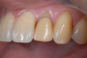 cosmetic dental crown - before