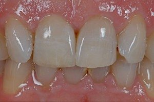New ceramic crown replacing poor quality tooth crown