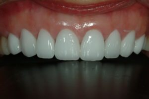 cosmetic dental veneers rehabilitation