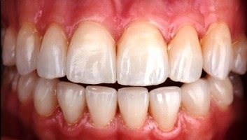 porcelain veneers process after