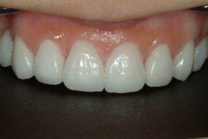 dental makeover with porcelain veneers
