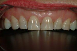 dental veneers full rehabilitation