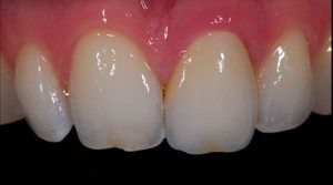 cosmetic ceramic front tooth crown after