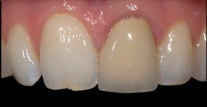 cosmetic ceramic front tooth crown before