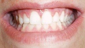gum lift or crown lengthening result
