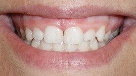 gum re-contouring for cosmetic dental veneers