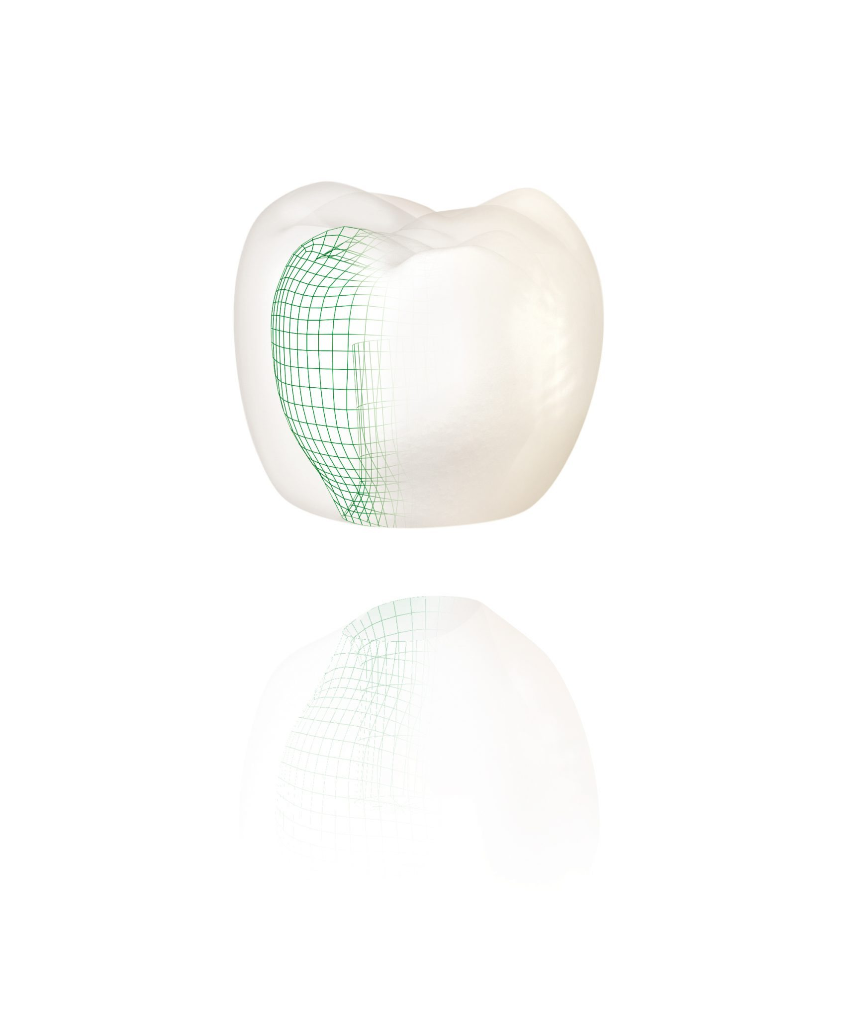 all ceramic metal free crowns