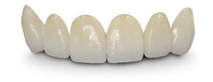 cosmetic dental bridge