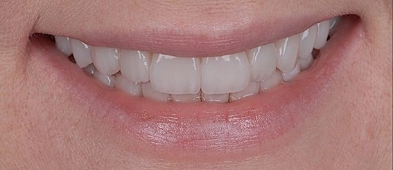 bad crowns after replacement