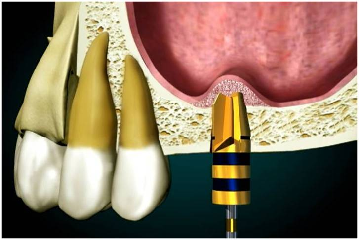 Dental implants sinus lift