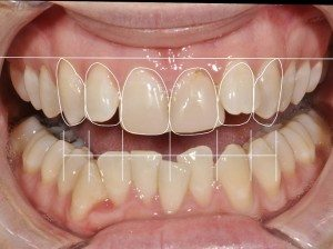 Before and After Porcelain veneers treatment photos