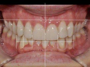smile design 3
