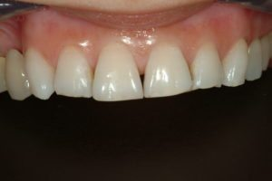 porcelain veneers smile makeover