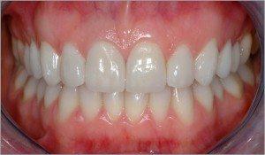 Ceramic Veneers & Teeth Whitening