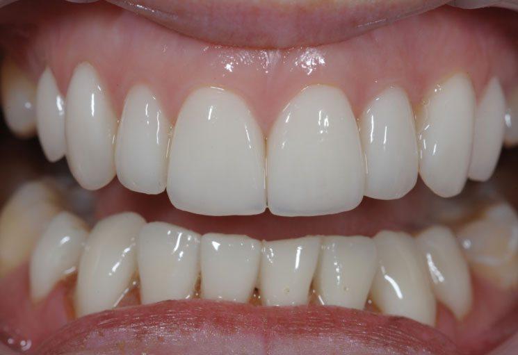 treatment with cosmetic dental veneer