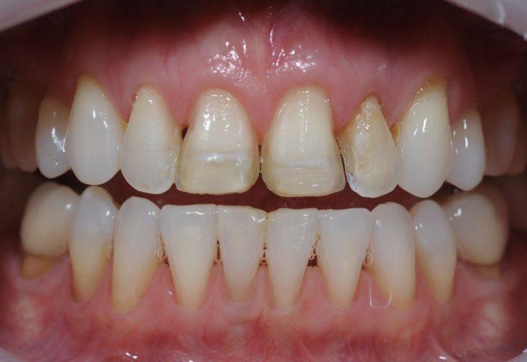 cosmetic dental veneers - before the restoration