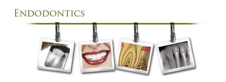 Endodontist Specialist Treatment