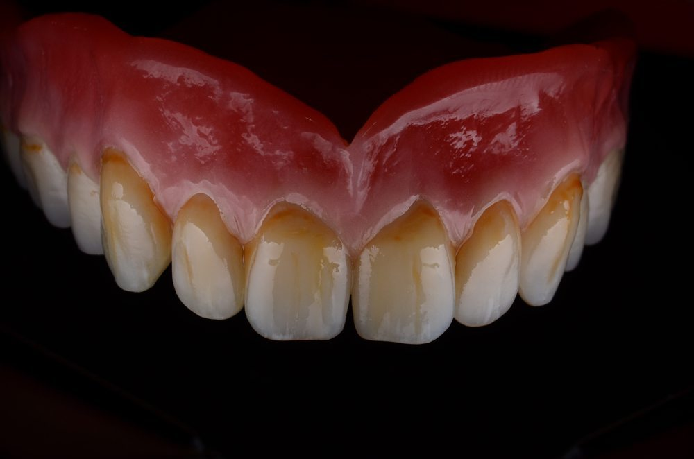 private denture prices