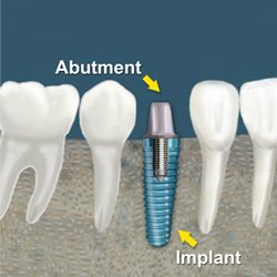 price - dental - implants