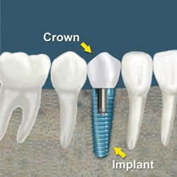 dental implants crown fee