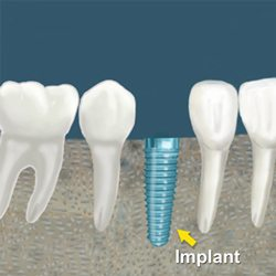 dental implant procedure costs and fees