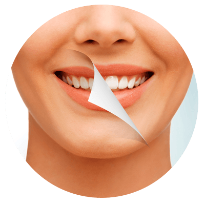 discoloured teeth treatment