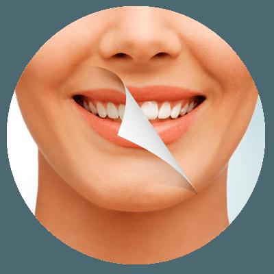 discoloured teeth treatment