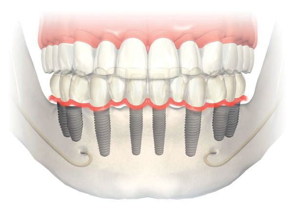 Replacement Teeth - Dental Implants - Dental Guide