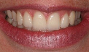 Gap in Tooth Treatment