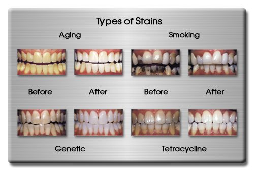 stained teeth treatment