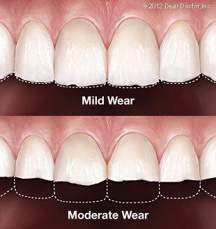 mild to severe worn down teeth