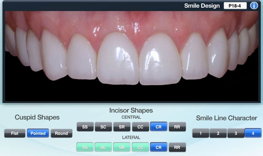 Same Day Smile Makeover