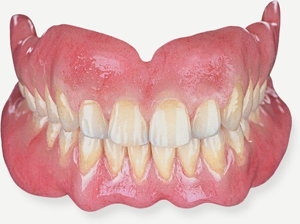 Private Dentures by Award Winning Preston Dentists
