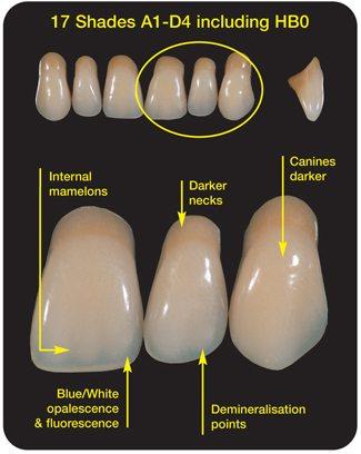 Cosmetic Dentures Preston