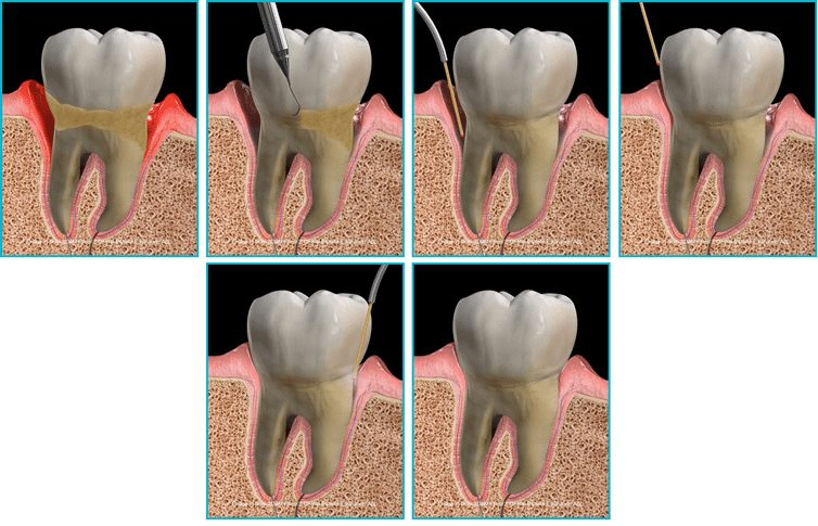 gum disease full mouth treatment