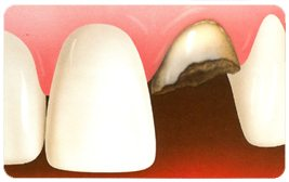 fractured tooth treatment with dental implants and bone grafting