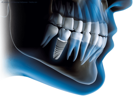 dental implant bone grafting - missing teeth replacement options