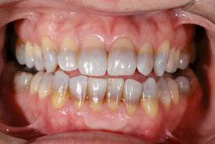smile makeover with porcelain veneers - before treatment