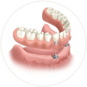 secured implant denture