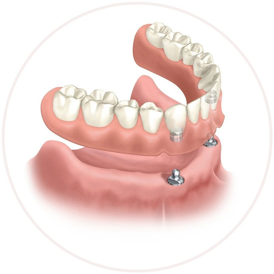 Denture implants replacing Missing Teeth