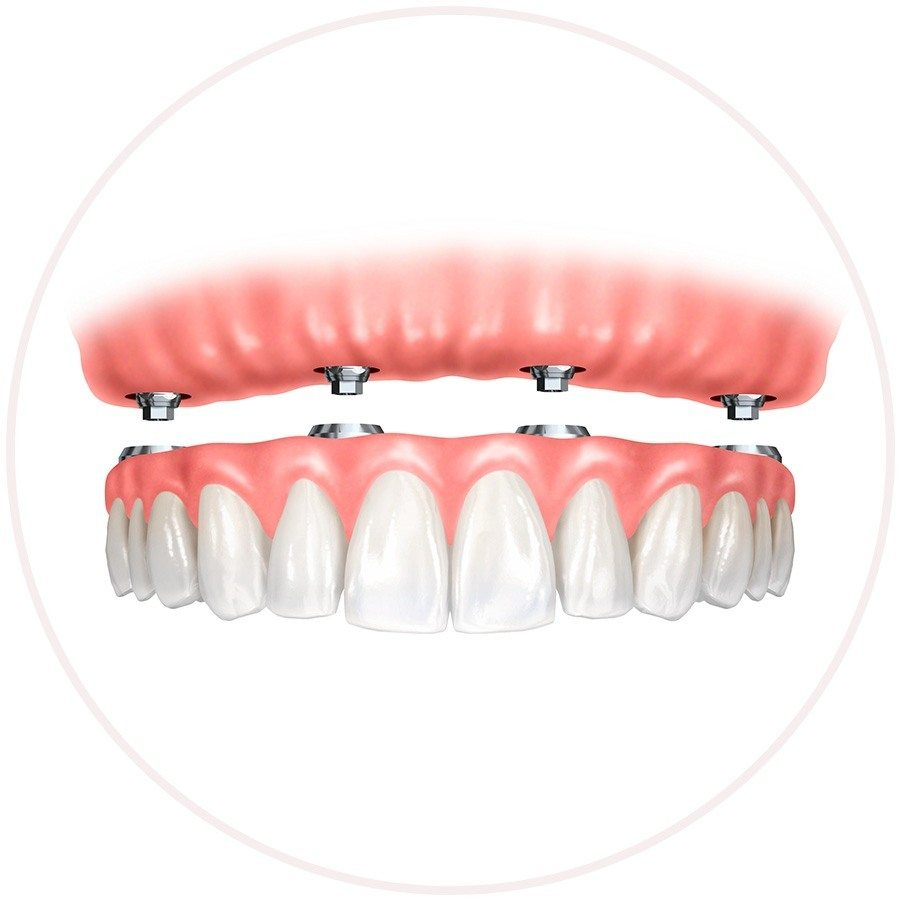 implant denture teeth