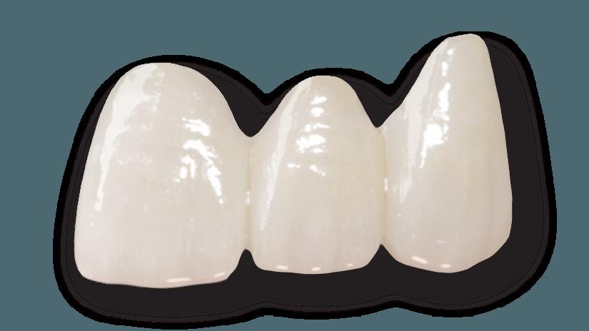 Dental Bridges Preston