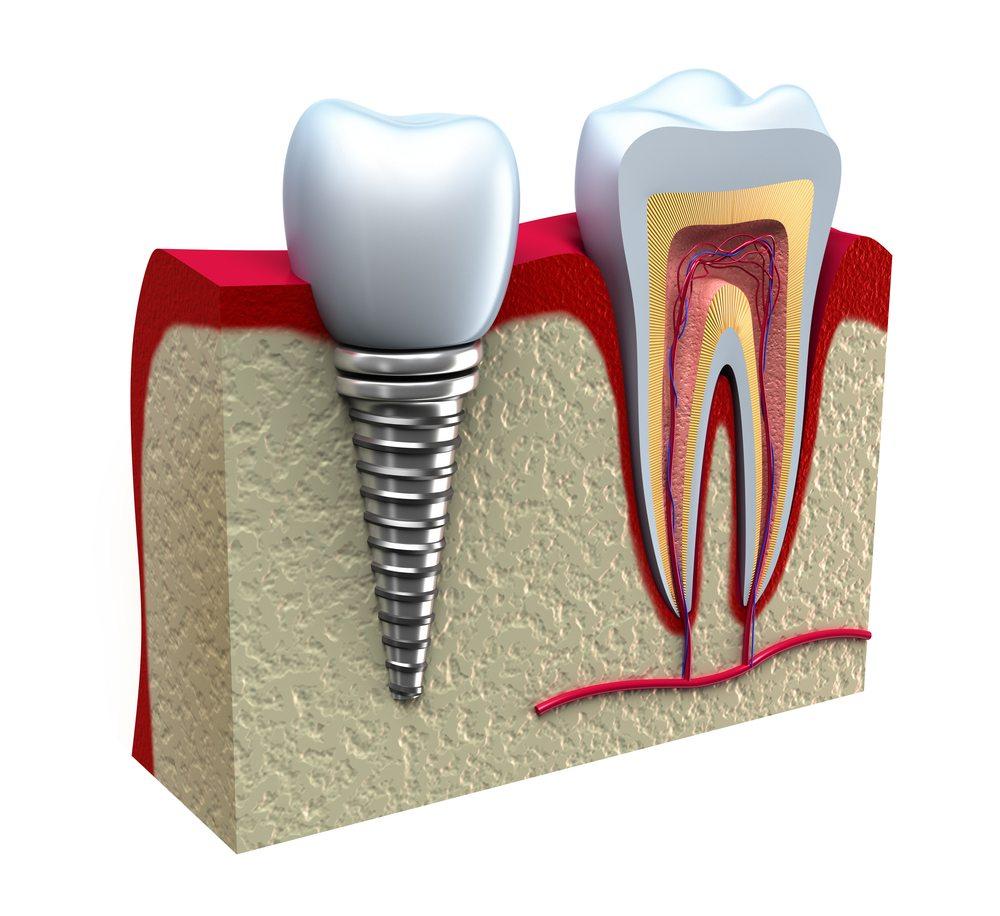 Dental Implant Practice , UK