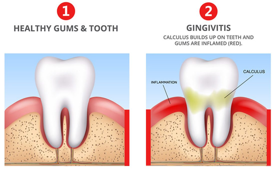 Gingivitis - Symptoms and causes